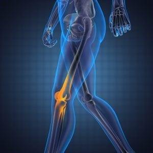 Knie Artrose Pijn Loper Blauw Focus