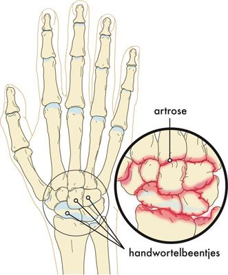 klachten-artrose-pols
