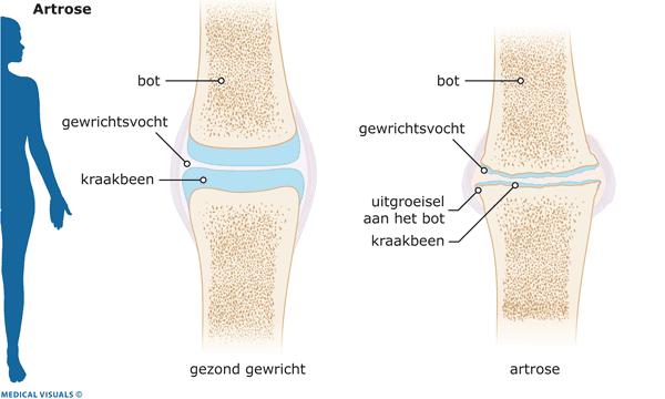 knie-artrose-uitleg